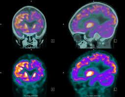 Predicción de ataques epilépticos