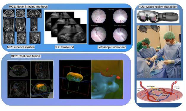 Médicos e ingenieros, unidos en cirugía fetal