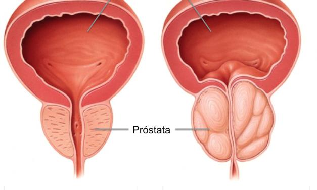Mutaciones en genes, claves para tratar tumor de próstata